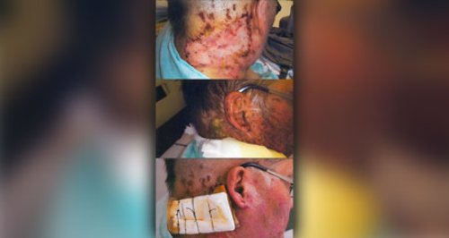 Witham acid attack